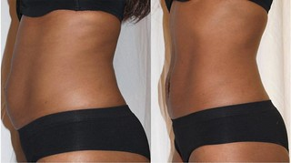 midsection b&a - laserlipo