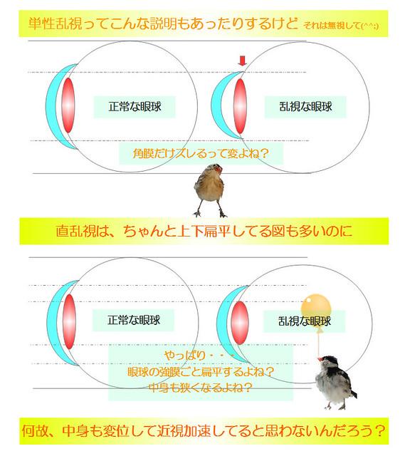 知りたい!簡単図解シリーズ03|乱視の不思議〜強度乱視になると角膜だけじゃなくて眼球も変形してるよね?という説明の図|真・視力回復法|視力回復コア・ポータル