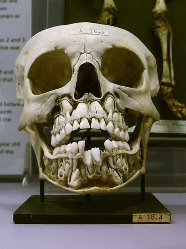 Child's skull with baby teeth and adult teeth, Hunterian Museum, London | by Stefan Schäfer