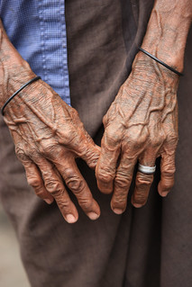 Elderly Timorese in Suai Loro | by United Nations Photo