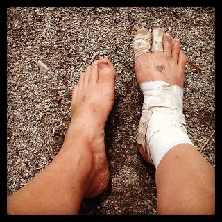 injured feet - val in real life
