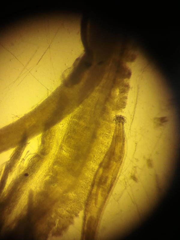 trematode parasite hooked gut of larval fish