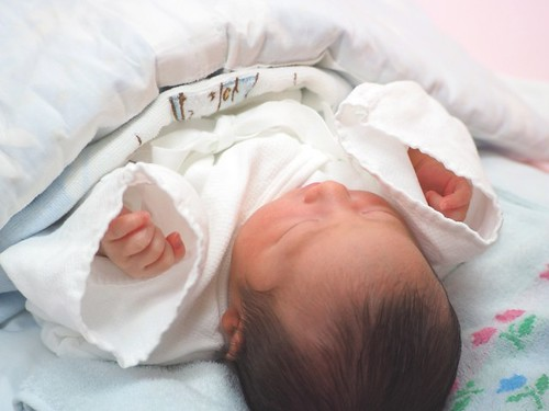 赤ちゃん 乾燥性湿疹 乳児湿疹