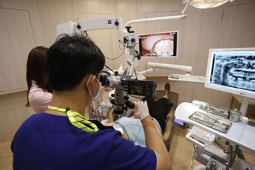 我的蛀牙得救了!板橋絕美牙醫顏成翰醫師的顯微根管治療術拯救了我 (8)