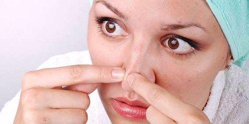 Tips Menghentikan Peradangan Jerawat Yang Tak Kunjung Sembuh