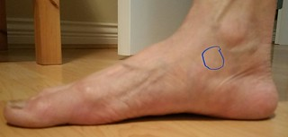 2016-Jun-1 location of pain relief on my mom's foot thanks to Lakota Arthritis Roll-On Pain Reliever