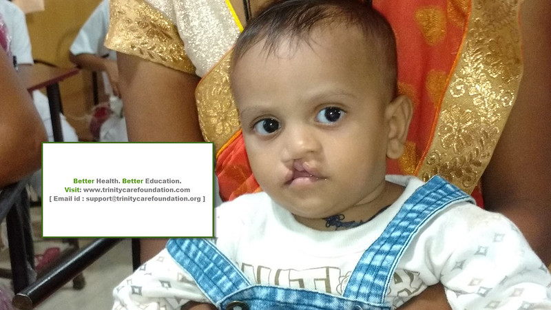 Facial Deformity Program || Chitradurga District
