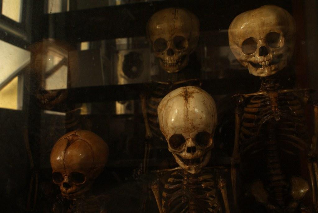 Une partie un peu morbide du musée de l'anatomie de Bangkok.