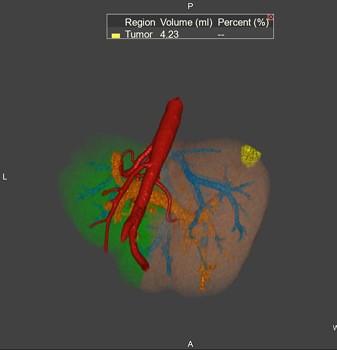 3d Radiology Center - Liver
