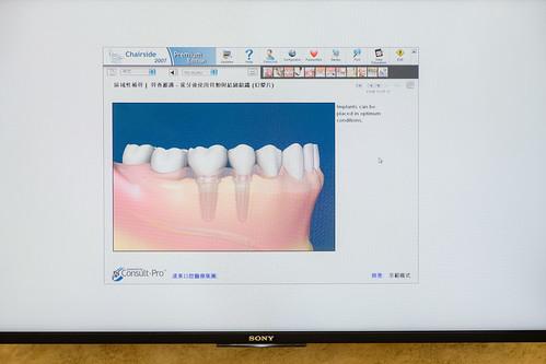 老人家全口缺牙,到底植牙好還是活動假牙好?林孟儒醫師專業觀點分享 (3)_植牙