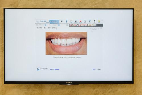 [推薦] 台南遠東牙醫3D齒雕讓我變身甜姐兒,展現完美微笑曲線1 (7)
