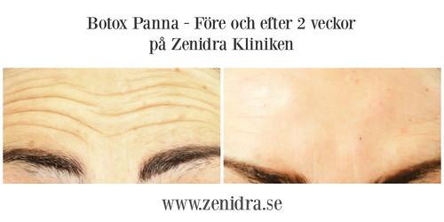 Botox Panna före och efter
