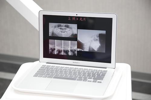楊鎮瑋醫師分享三個觀念讓你的牙齒矯正結果更好看 (6)_矯正前